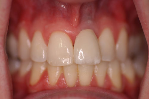 implant-after